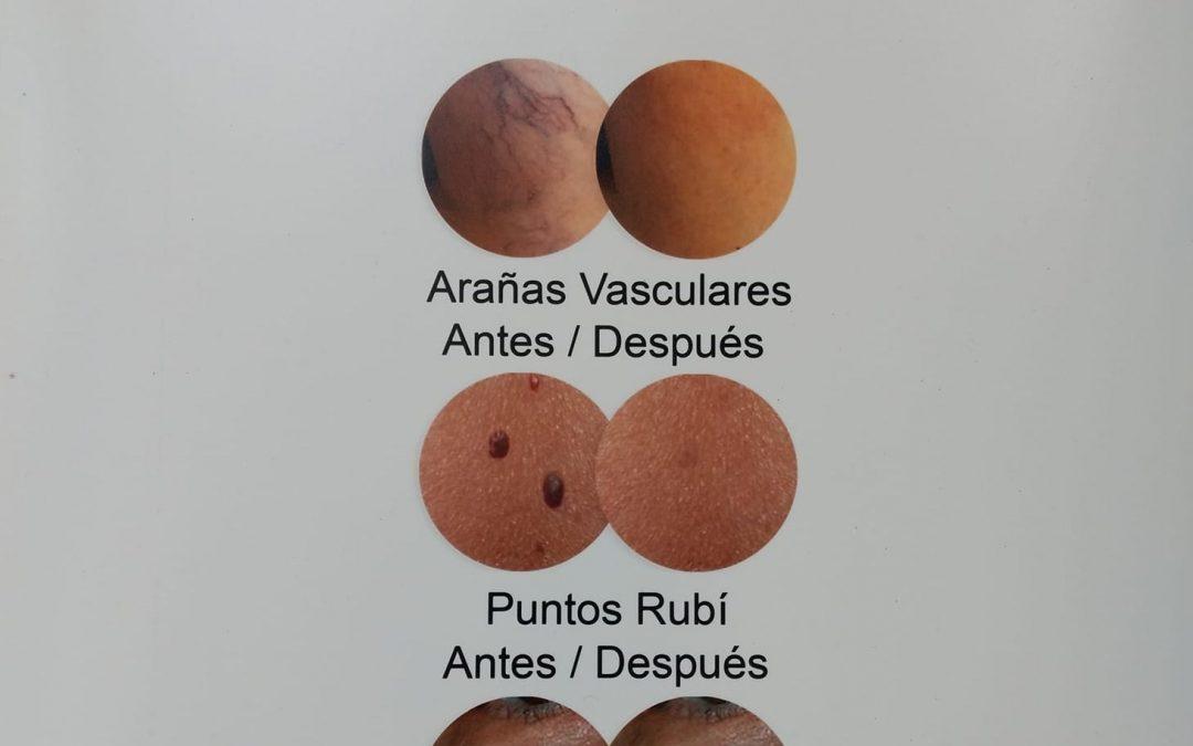 LÁSER VASCULAR , ARAÑAS VASCULARES